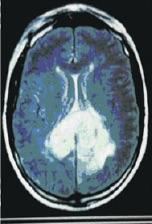 Cáncer de cerebro