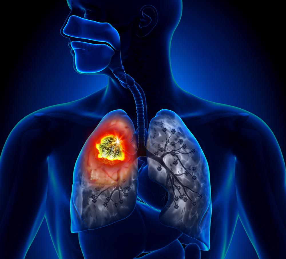 efecto radiosensibilizante en el Cáncer de Pulmón