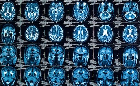 Glioma cáncer de cerebro